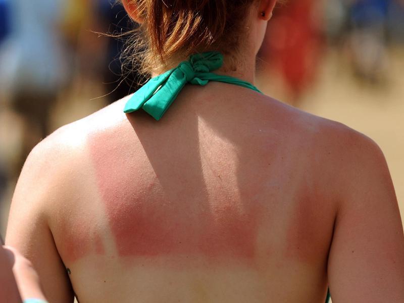 Обгорели на солнце — помогут народные средства